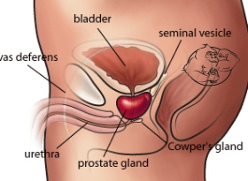 prostate damage