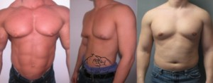 types of gynecomastia
