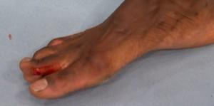 Uriah Hall broken toe