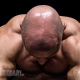 Steroids-and-Hair-Loss