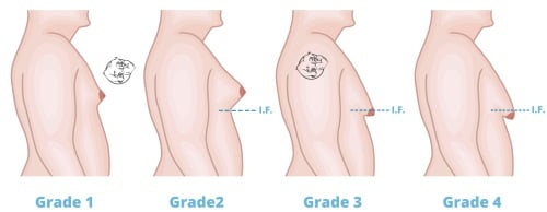 stages of gynecomastia