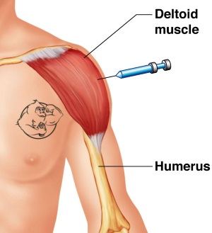 Deltoid injections (shoulder)