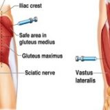 triceps steroid injection