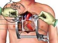 CT Fletcher open heart surgery