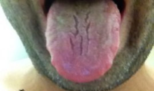 end of day 3 pictures of tongue