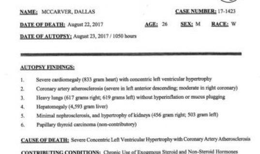 dallas-autopsy-findings