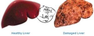 liver-damage