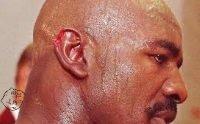 Evander Holyfield ear