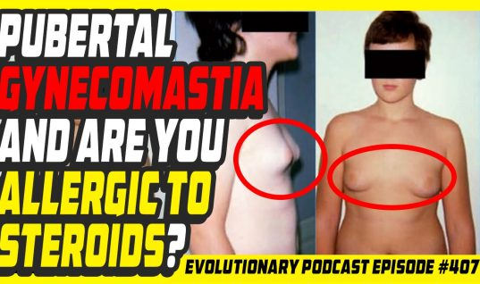 Evolutionary.org Podcast #407 – Pubertal gynecomastia and are you allergic to steroids?