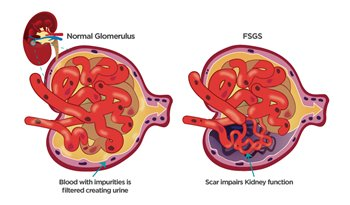 blood genetic condition known as FSGS