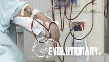 dialysis treatments